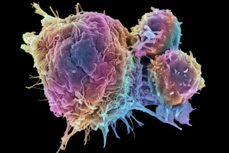 FGJJJ1 T lymphocytes and cancer cell. Coloured scanning electron micrograph (SEM) of T lymphocyte cells (smaller round cells) attached